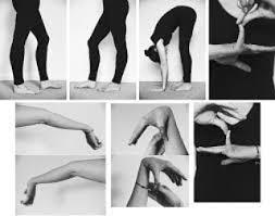 Синдром гипермобильности: физические упражнения, профилактика.
