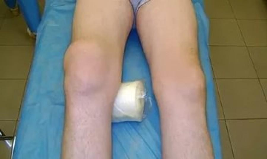 Синовит и теносиновит: причины, симптомы и лечение.