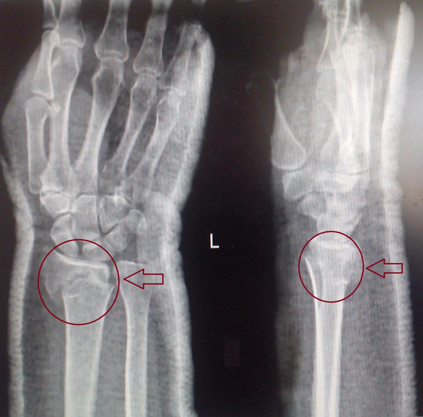 Закрытый перелом лучевой/локтевой кости: симптомы, лечение, восстановление