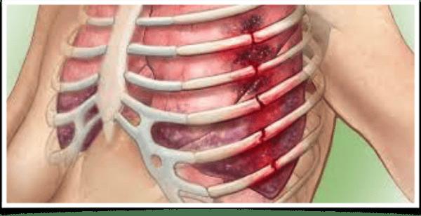 Перелом ребра или сломанное ребро: причины, симптомы, лечение