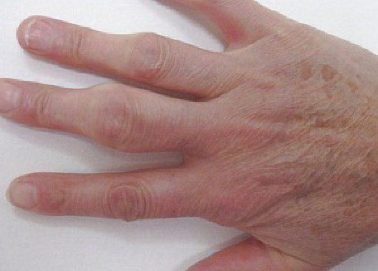 Что делать для распухших суставов пальцев?