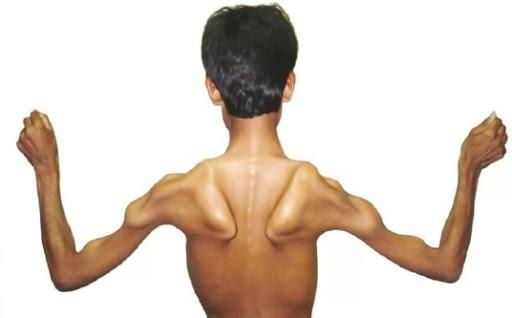 Разве мышечная дистрофия это наследственное заболевание?
