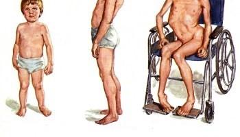 Способы лечения и облегчения мышечной дистрофии.