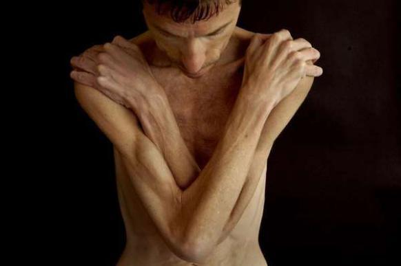 Какое влияние оказывает мышечная дистрофия на организм?