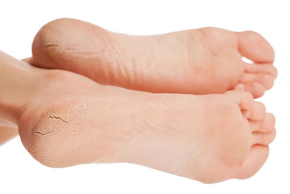 Трещины пятки и средства для лечения сухих трещин на пятках.
