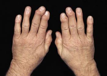 Остеоартроз причины, виды, симптомы, лечение и профилактика.