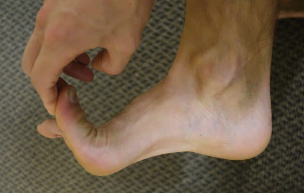 Разрыв сухожилия в большом пальце ноги: причины и симптомы.