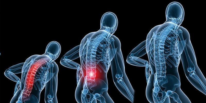 Является ли миофасциальный болевой синдром серьезным состоянием?