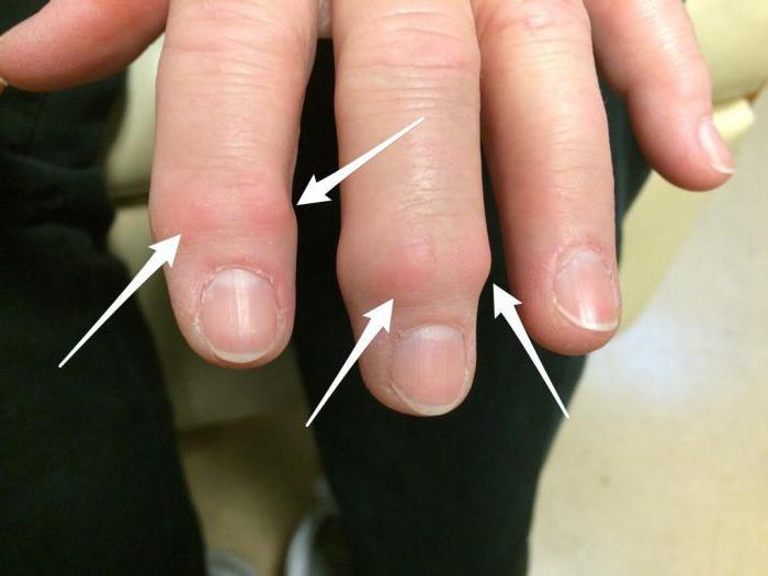 Остеоартроз кистей рук: факторы риска, симптомы, лечение, хирургия.