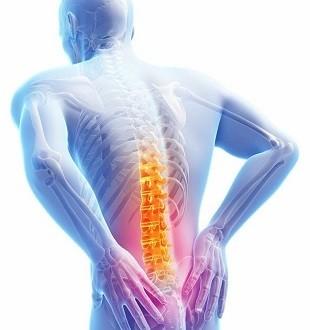 Есть ли операция для миофасциального болевого синдрома?