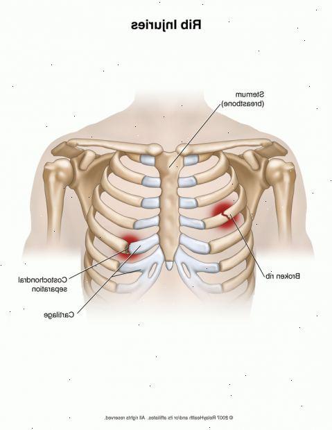 Синдром скользящего ребра: причины, симптомы, лечение