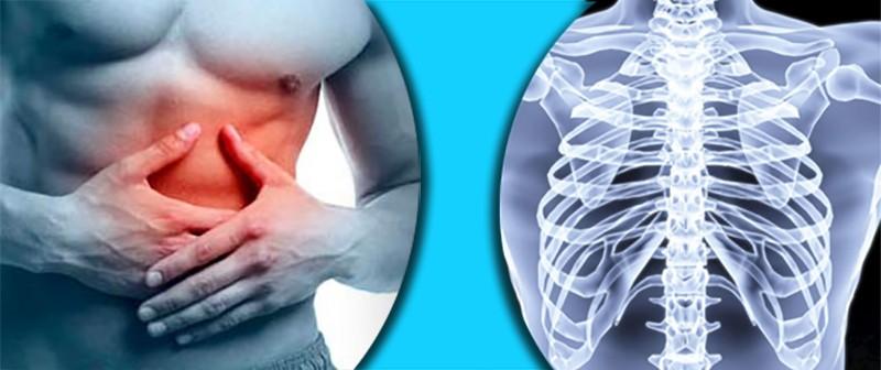 Травма или перелом реберного хряща: причины, симптомы, лечение