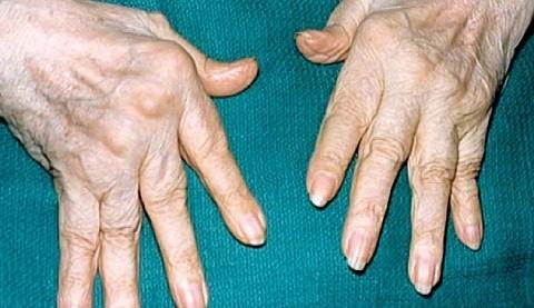 Ревматоидный артрит рук: симптомы, признаки, лечение-консервативное, ФТ, хирургия
