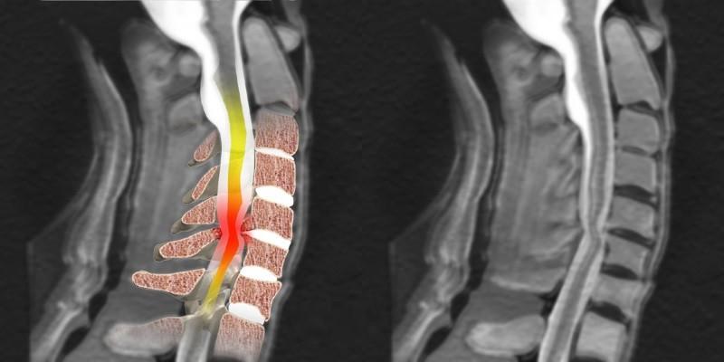 Защемление нерва в шейном отделе: причины, симптомы, лечение.