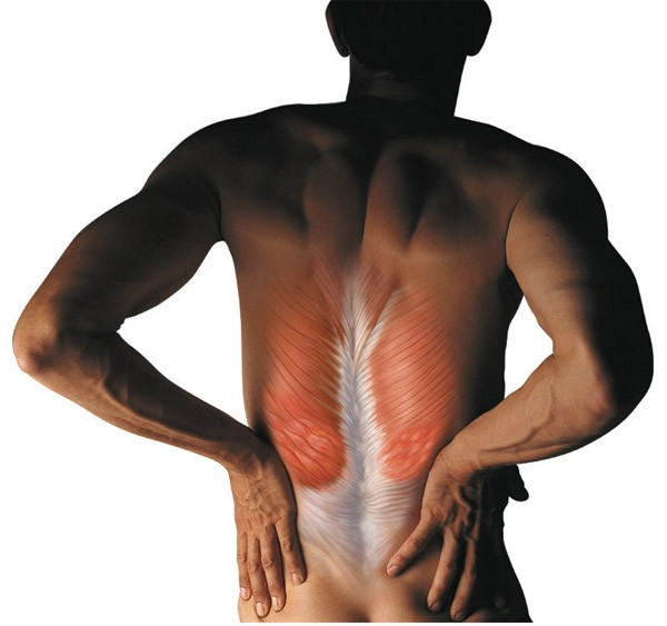 Спазм мышц спины: признаки и симптомы.