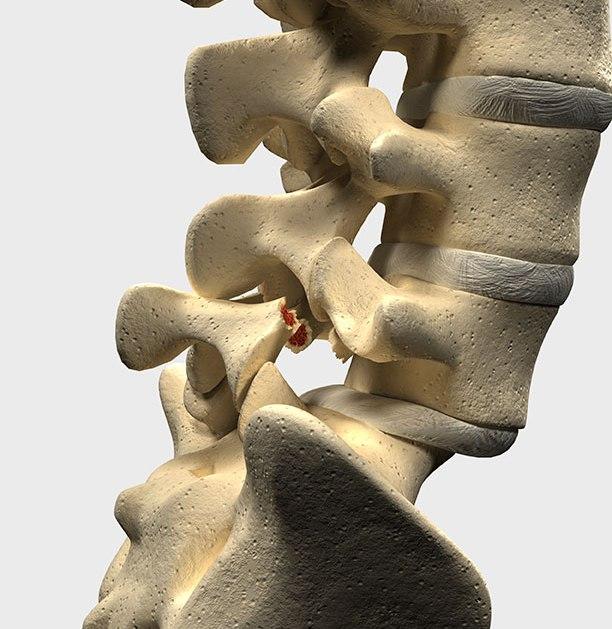 Ухудшается ли со временем Спондилолистез и может ли вызвать паралич?