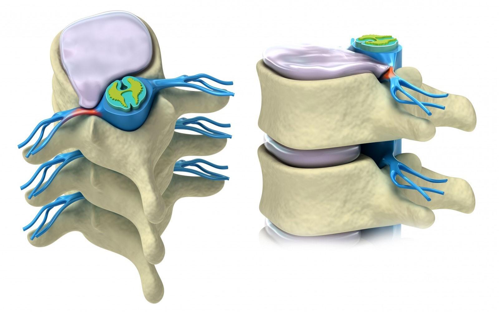 Что такое высыхание межпозвоночного диска и как его лечить?